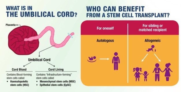 Is Cord Blood Banking Necessary?